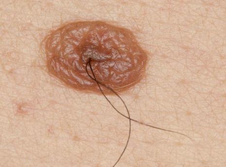 mole-with-hair-1504094102